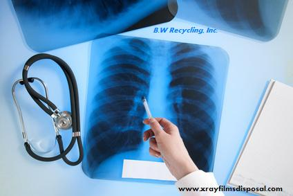 x-ray film recycling services